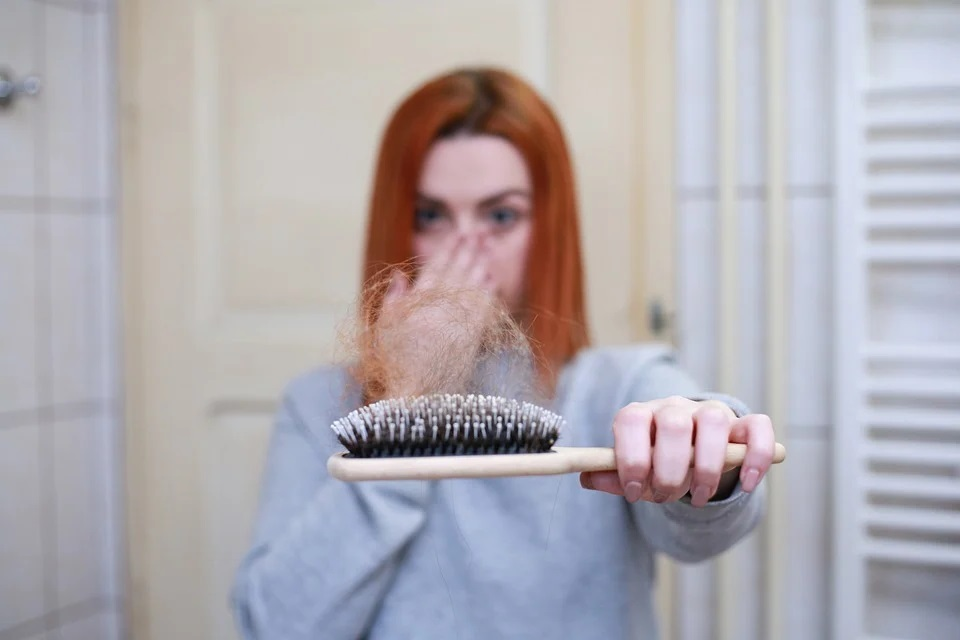 calvitie chute des cheveux
